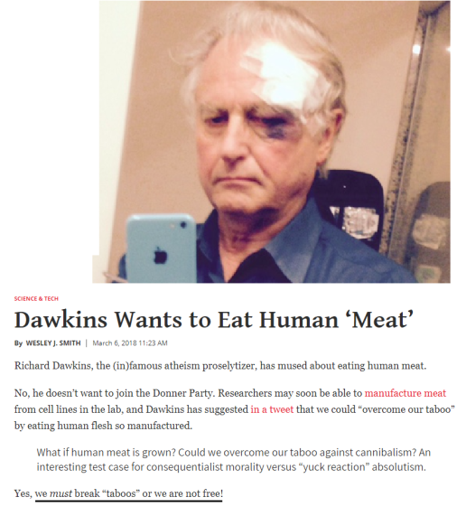 Dawkins black eye 1